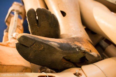 piernas-ortopedicas-COPE-Vientiane-impresiones-del-mundo